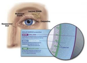 dry eye syndrome and treatment